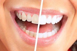 Beljenje zob posvetli zobe.